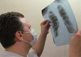 В колоніях Херсонщини за 3 роки на 27% знизилася смертність від туберкульозу