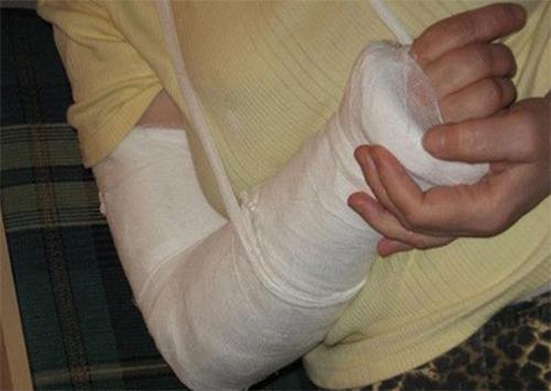 В Херсоне сплошные переломы