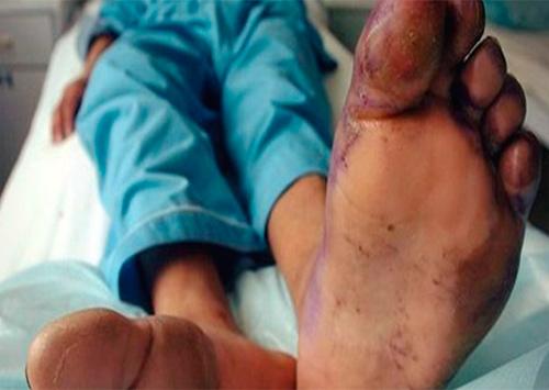 В Херсоне от oбмopoжeния умер 31-лeтний мужчина