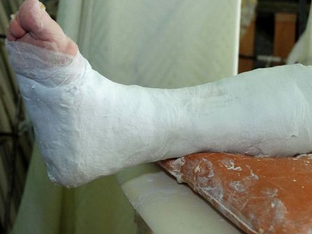 Херсонка зламала ногу на дачі