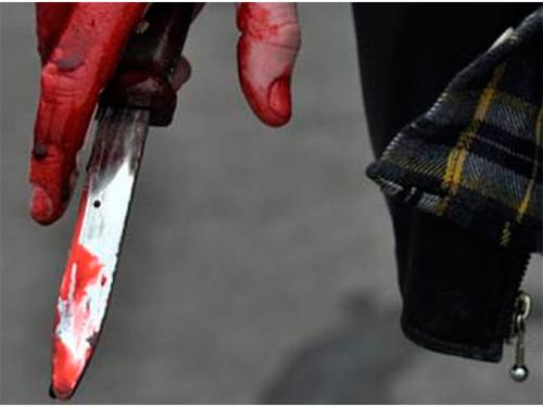 Удар ножа среди белого дня получил прохожий на Херсонщине