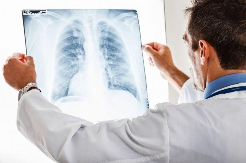 У другому за значенням місті Херсонщини - спалах пневмонії