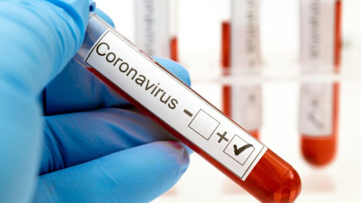 спалах, коронавірус, Чабан
