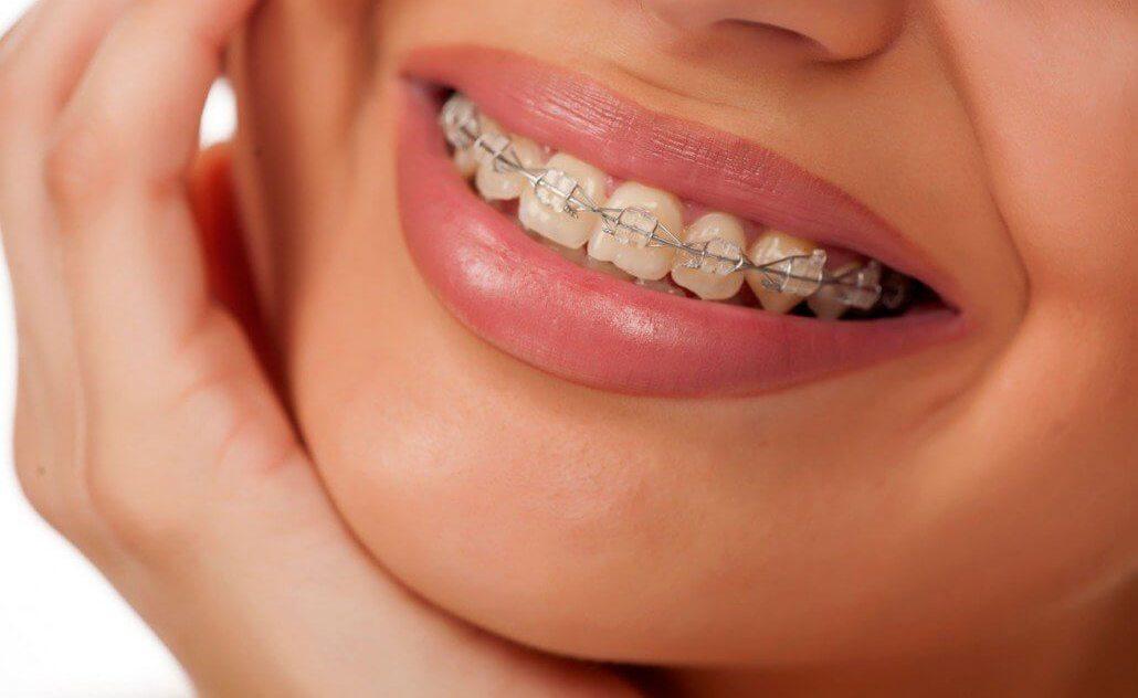 Белоснежная керамика на ваших зубах