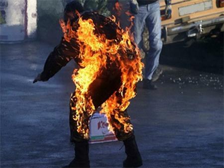 В херсонском ПТУ подросток горел заживо