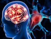 Порушення мозкового кровообігу: що важливо знати про патологію
