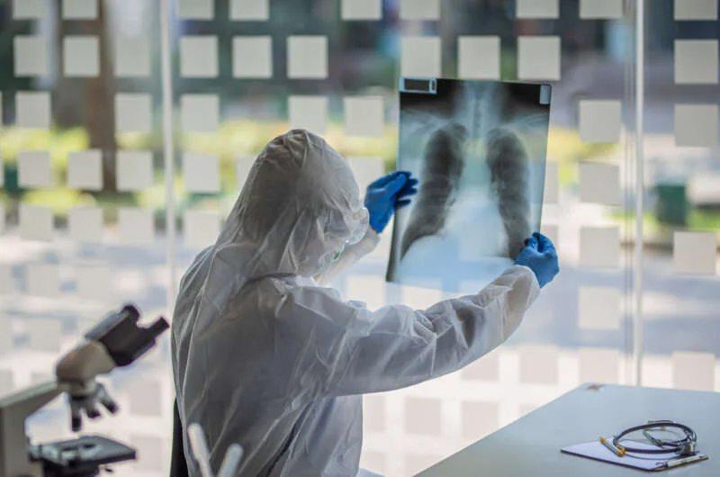 Врачи показали, что происходит с легкими после инфицирования Covid-19