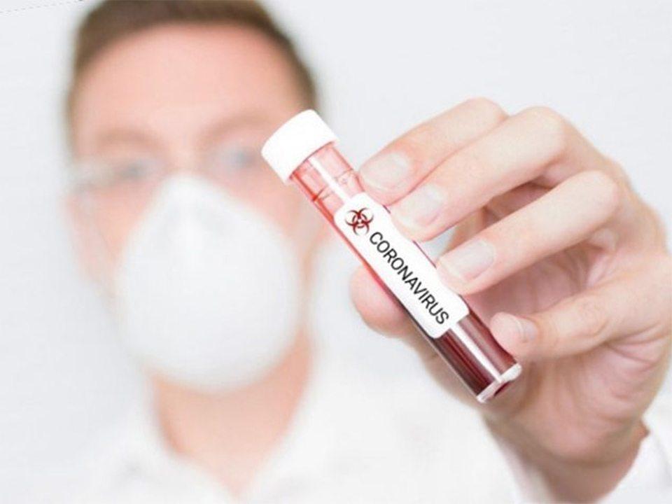 Чи варто робити щеплення під час пандемії?