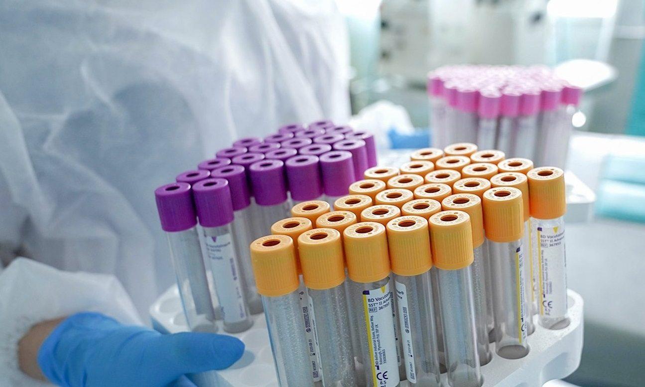 В Украину надвигаются четыре новых штамма гриппа, которые могут наложиться на коронавирус