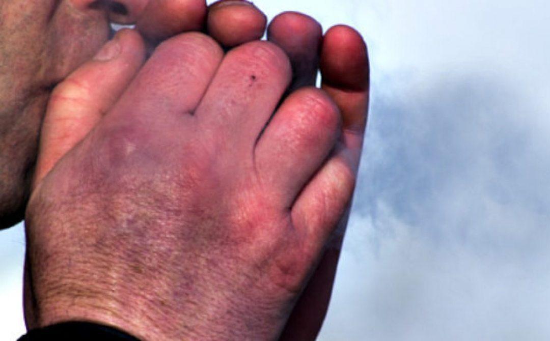 На Херсонщине зафиксированы первые случаи обморожения