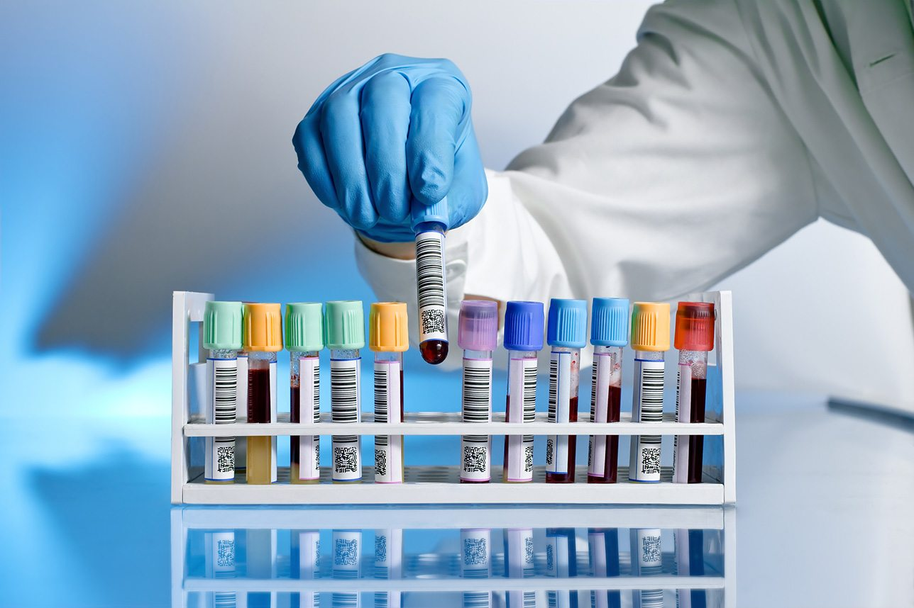 Кількість хворих на коронавірус по районам Херсонщини